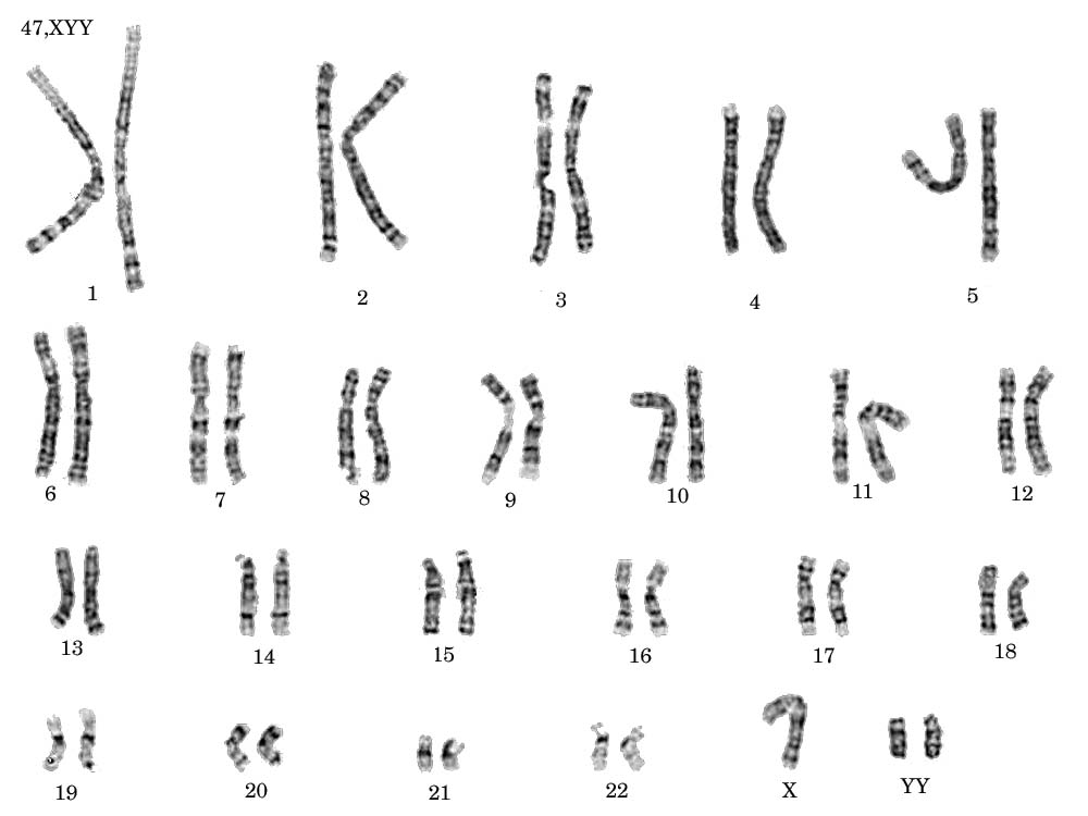 Xyy Syndrome Karyotype The normal karyotype of a