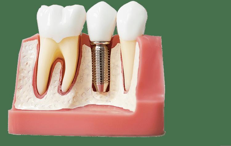 Имлпантация зубов