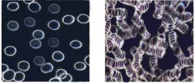 Окисленные и здоровые клетки