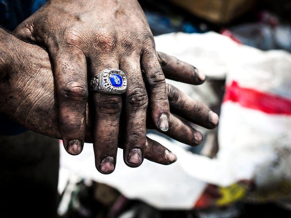 An 18 year old boy displays his dirty hands and a school ring he found from sorting garbage. He says he works here because can not find a job and cannot go to school because he has no home. He sleeps in a tiny handmade tent next the trash to wake up to first grabs of the garbage. Esteli, Nicaragua. Photo by: Timothy Bouldry, 2015.