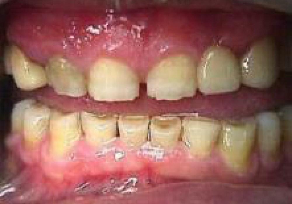 Причина постукивания зубов