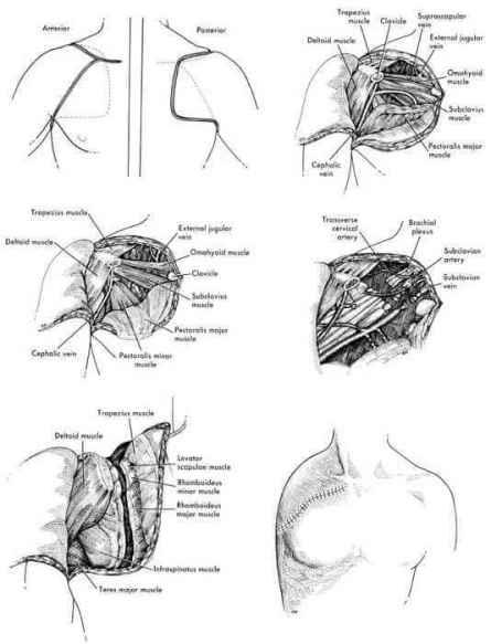 forequarter amputation