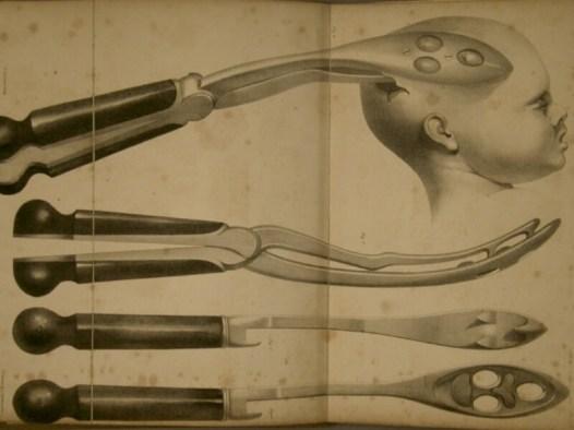 storia della chirurgia_strumenti chirurgici_cranioclast
