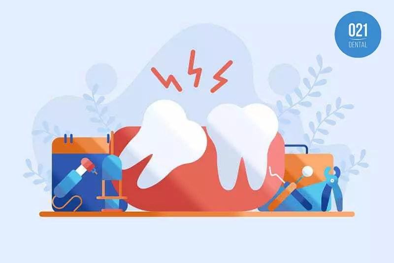 Guia dental sobre o dente do siso