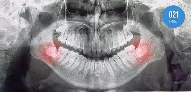 O que fazer quando o dente do siso começar a doer?