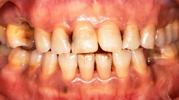 dentes cariados e sem limpeza dentaria