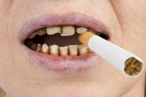 cigarro causa amarelamento dos dentes
