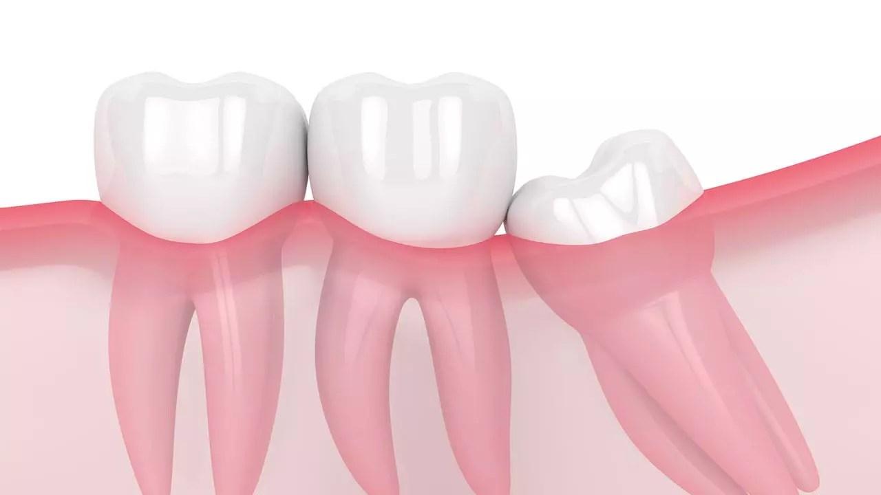 o que é o dente siso