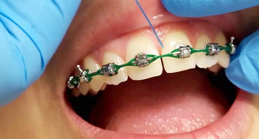 Escovar os dentes com aparelho