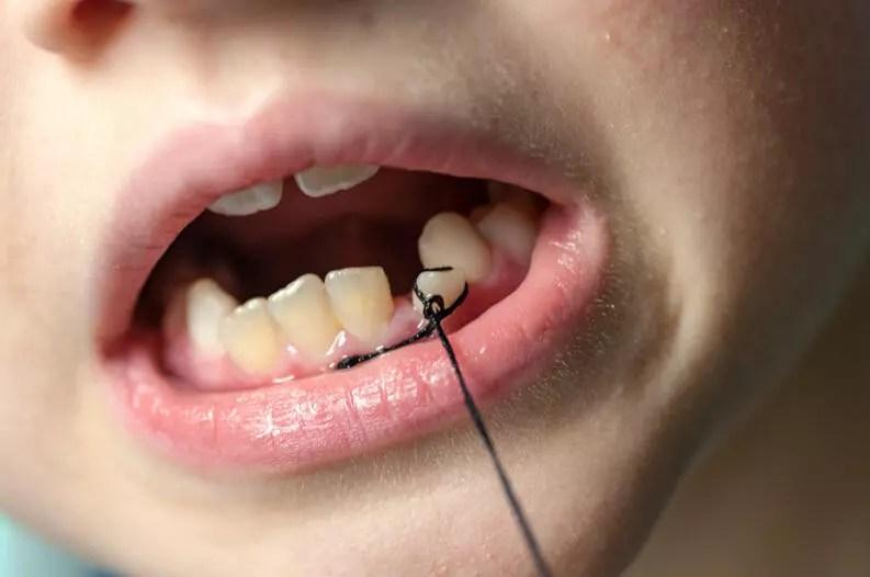 dente de leite sendo arrancado com linha