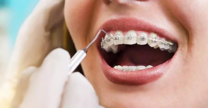 dentista avaliando dentes de mulher com aparelho dentário