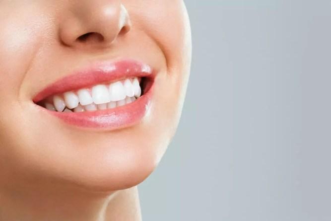 Benefícios do Clareamento dental