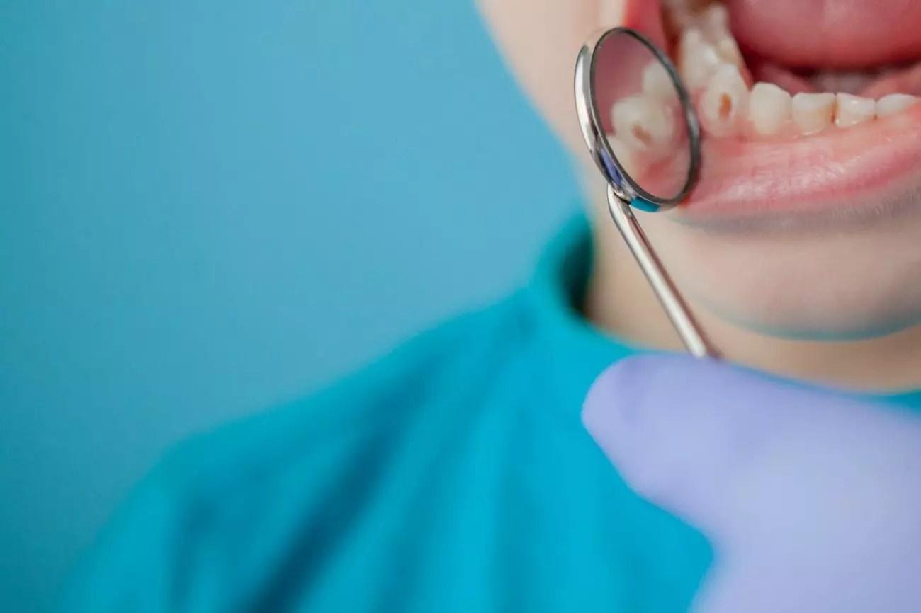 Quais são os sintomas da cárie dental