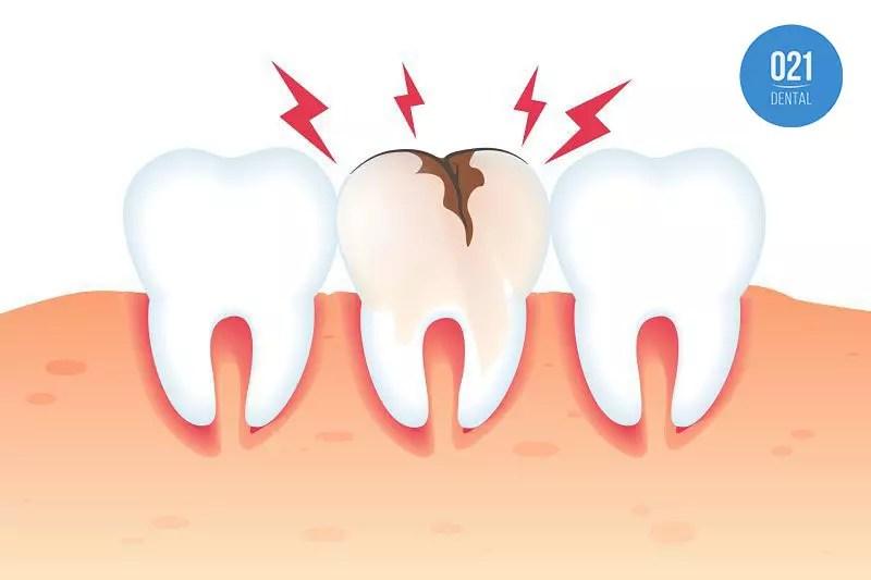 Dentes quebrando: conheça os principais motivos
