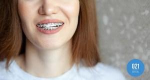 Menina utilizando aparelho ortodontico para correção de mordida cruzada