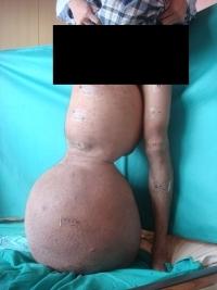 2013印尼象腿個案(s)