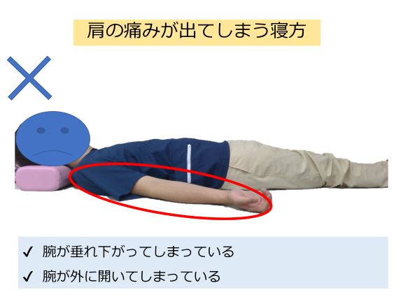 0816fdd1c5e4436e86899deca6e321a1 - 四十肩・五十肩の症状と原因|3つの時期に合わせたストレッチや運動方法を徹底解説!
