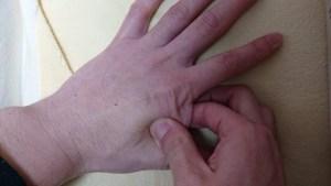 65b7f14f82364d0bb8a805eff75a2dd9 300x169 - 【腰痛】ぎっくり腰の痛みを治す方法!もうならないための対処法も!