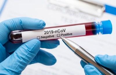 Indyxa aplica tecnologia no combate ao Coronavírus. Divulgação