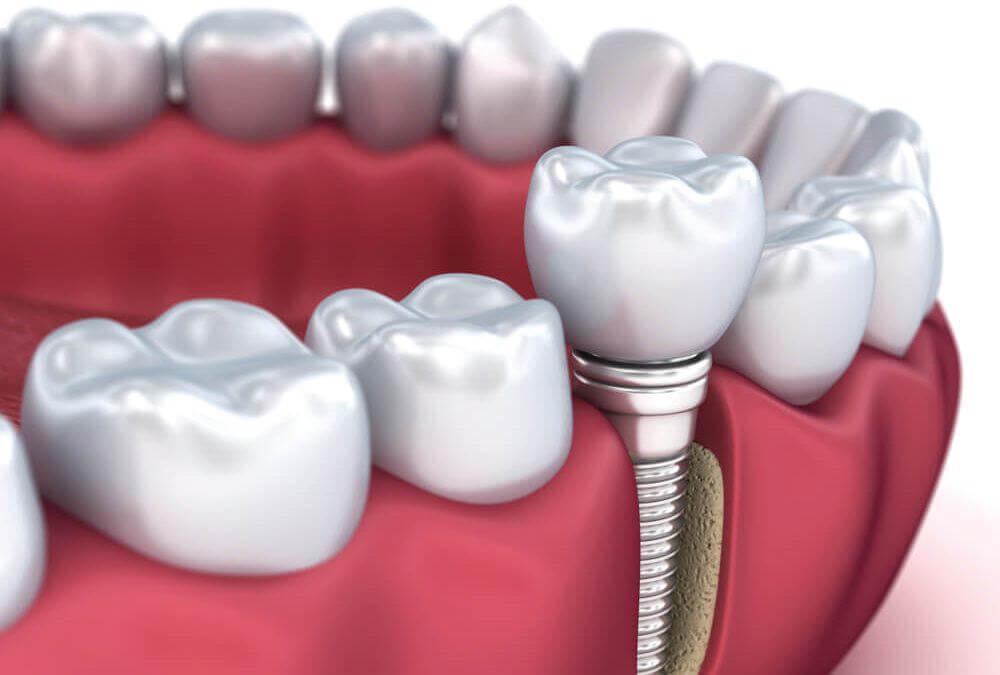 dentes-cirurgia