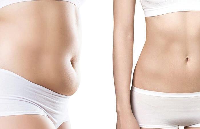 gordura-localizada