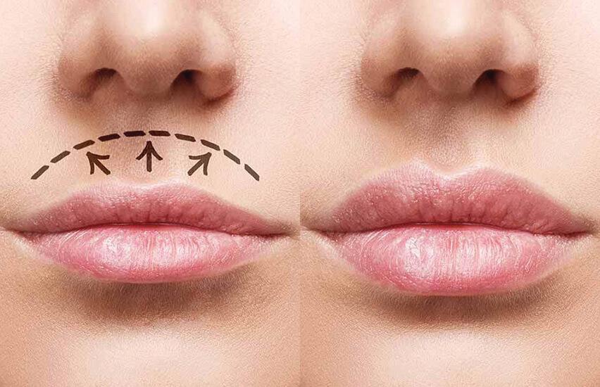 lip-lift-lifting-lábios