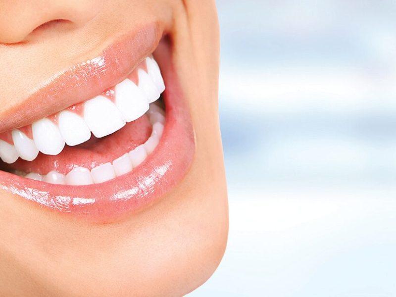 cirurgia gengival nos dentes