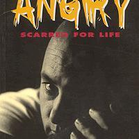 Book review: ANGRY, Scarred For Life by Karen Dewey