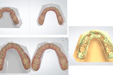비발치교정- Damon orthodontics