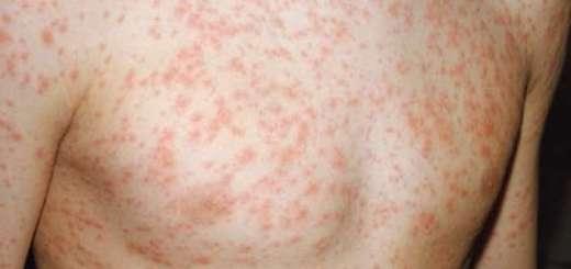 Συντονισμένες Δράσεις της 7ης Υ.ΠΕ. Κρήτης για την επιδημία ιλαράς
