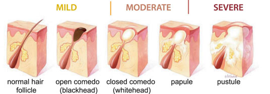 Dermatology on Bloor - Stages of Acne