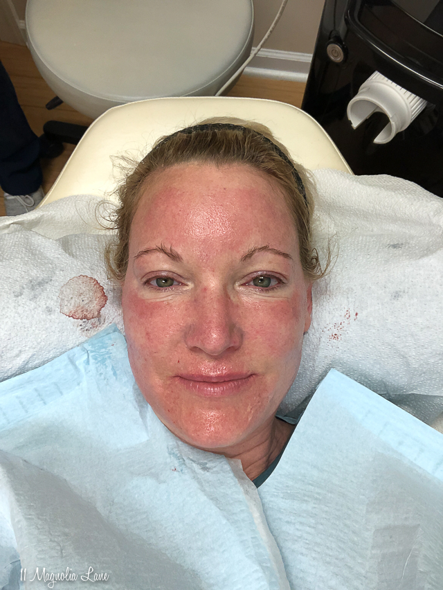Before and afters from my Morpheus 8 procedure | 11 Magnolia Lane