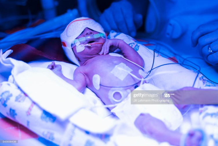 NICU baby is tended to in his isolette