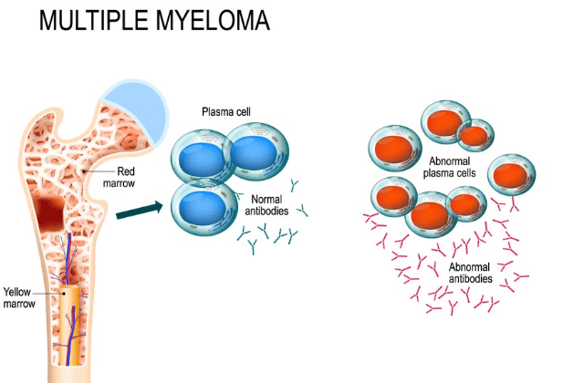 Multiple Myeloma – Symptoms,Causes and Treatment