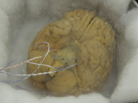 vitrified brain