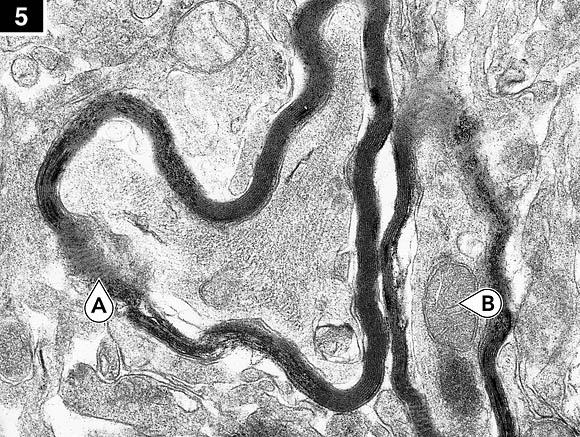 brain electron micrograph