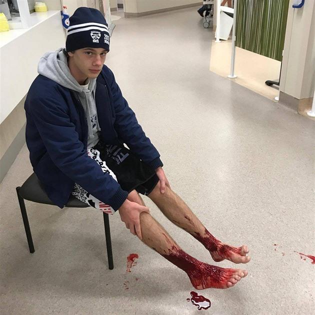 Sam Kanizay čeká na ošetření v nemocnici v Melbourne