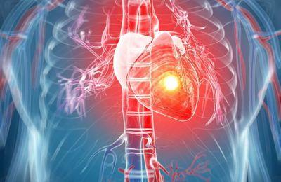 Могут ли присвоить инвалидность после инфаркта в 2020 году, когда возможен отказ