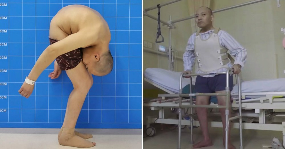 Chinese man who suffered from folded spine, finally stands up after 28 years