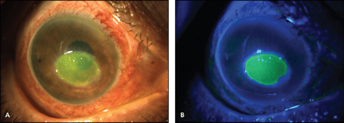 corneal abrasion with cobalt blue