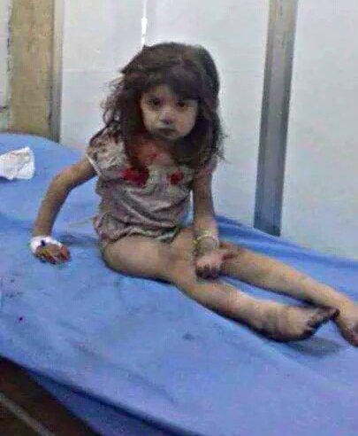 Aleppo baby