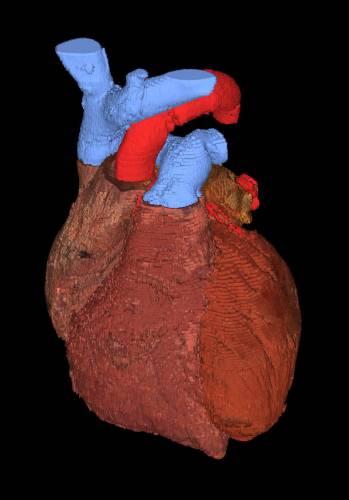 Poplach v organismu. Problém s transplantáty orgánů je v tom, že imunitní systém příjemce má sklon transplantát odmítnout, rejekovat.