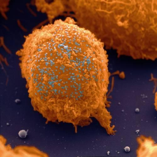 Barevný snímek viru HIV na povrchu T-lymfocytu, bílé krvinky (žlutohnědý hrudkovitý povrch s nepravidelnými výstupky), infikované virem (kulovité modré útvary) HIV (Human Immunodeficiency Virus).