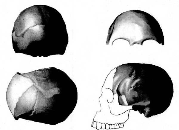 Doslova ke zničující bouři mezi badatel lze připodobnit případ tzv. Piltdownského člověka. Nevídaný rozruch začal 12. 12. 1912 na schůzi londýnské Geologické společnosti.