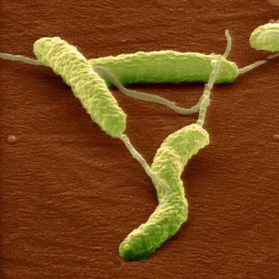 Choroby, z kterých jsme vinili své geny nebo nezdravý životní styl, mohou být vyvolány viry nebo bakteriemi. Bude nás v budoucnu chránit před Alzheimerovou chorobou nebo schizofrenií očkování?