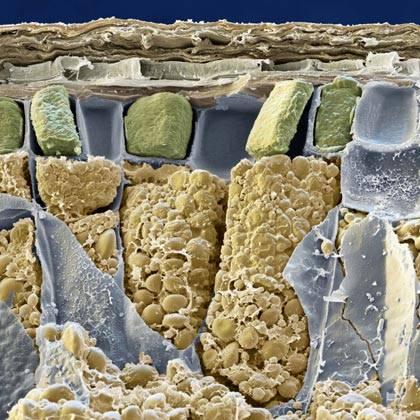 Žluté kukuřičky na obrázku ve skutečnosti nejsou kukuřičné palice, ale úplně jiné obilí. Jedná se o buňky k prasknutí nacpané škrobovými zrny (žlutě) v pšeničném zrnu, zvětšené 2400 x. Šedivá potrhaná fólie představuje buněčné stěny.