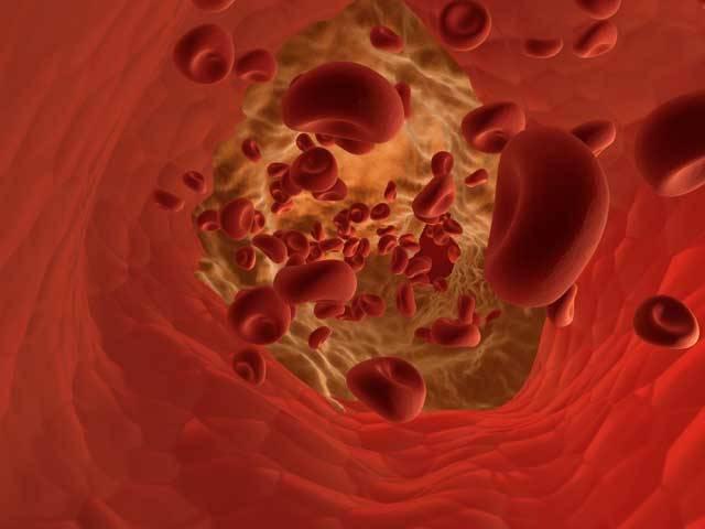 """Víte, jakou máte hladinu cholesterolu v krvi? A jakpak je to s vaším homocysteinem (Hcy)? Ten zkoumají odborníci relativně krátkou dobu, avšak už pro něj mají nelichotivou přezdívku """"hrozivý cholesterol 21. století"""". Nejnovější mezinárodní studie dokazují, že vhodné přístupy k Hcy snižují rizika kardiovaskulárních chorob až o 62 %!"""