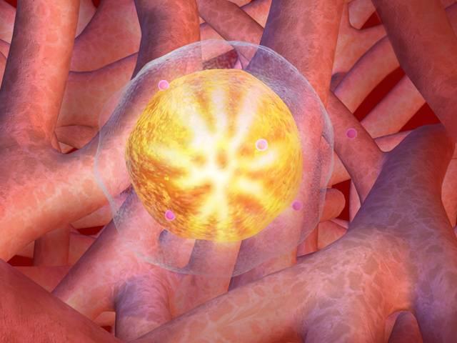 V roce 2030 se očekává trojnásobné zvýšení výskytu nádorových onemocnění na celém světě! Tato děsivá Jobova zvěst letos v červnu zazněla na výročním kongresu Americké společnosti klinické onkologie. Shodlo se na ní 30 000 (!) onkologů ze 100 zemí.