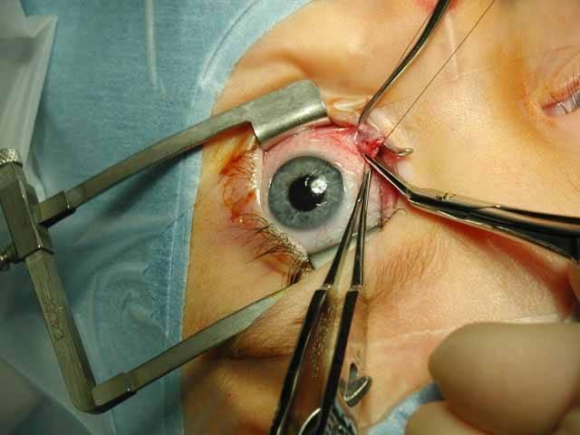 Ochrnutí tváře je nepříjemná lapálie. Nejenže vaše tvář nevypadá zrovna nejlépe, ale často se ztrácí i schopnost mrkat, která je důležitá pro správnou funkci očí. Ochrnutí lidé mají však novou šanci na znovuzrození pod rukama amerických plastických chirurgů. Do tváří jim už dokážou voperovat umělé svaly s malou baterií.