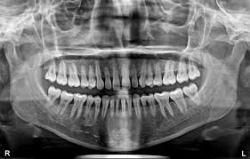 Mezinárodní den radiologie.